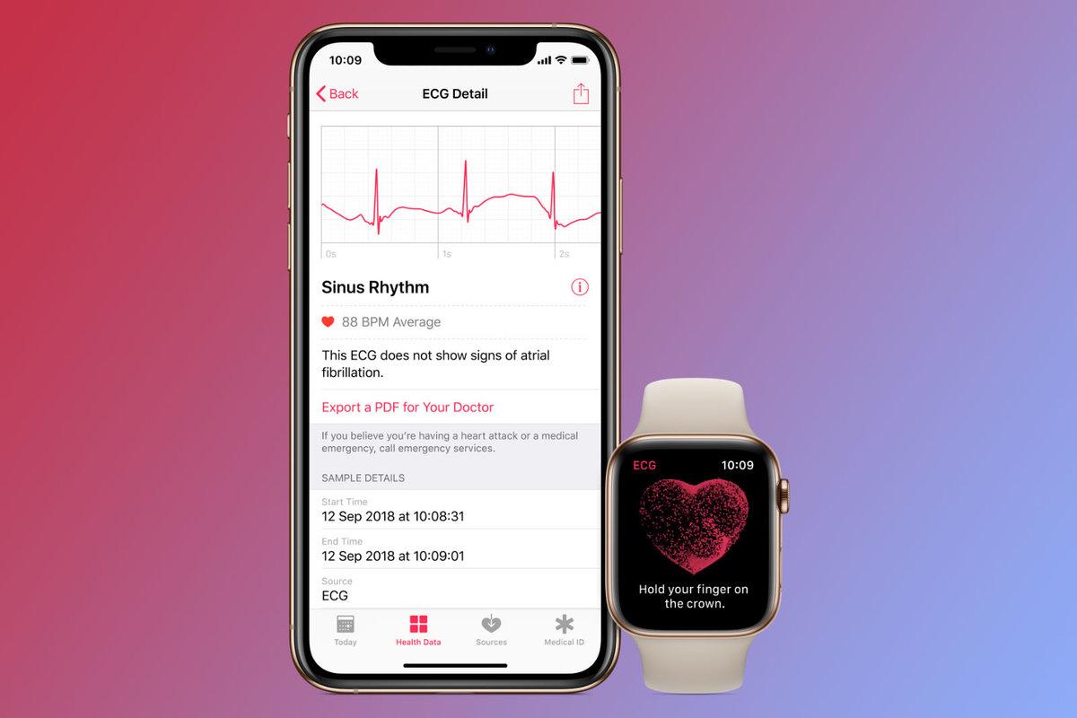 watchOS 7.5 disponible : les nouveautés sur votre Apple Watch