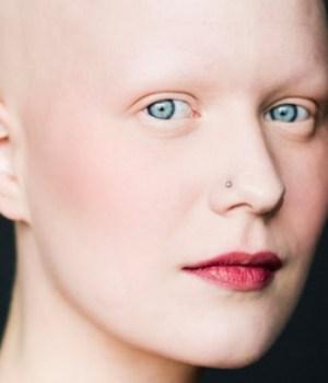 femmes-chauves-alopecie