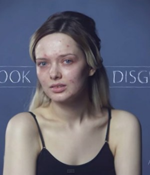 you-look-disgusting-video-acne-youtubeuse