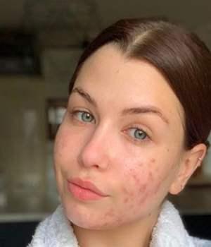 enjoy-phoenix-acne-hormonale