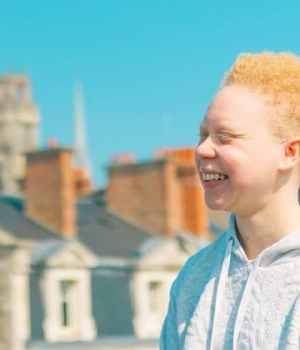 temoignage-jeune-femme-albinos-albinisme