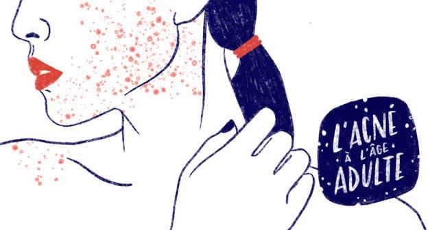 «acne-age-adulte-causes-traitements»